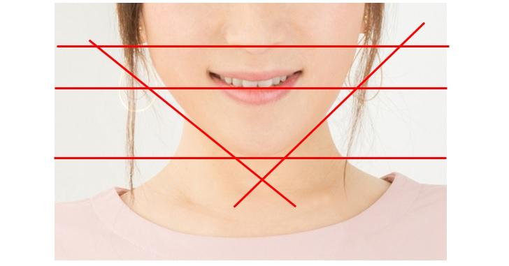 線付き顎の曲がりのイメージ