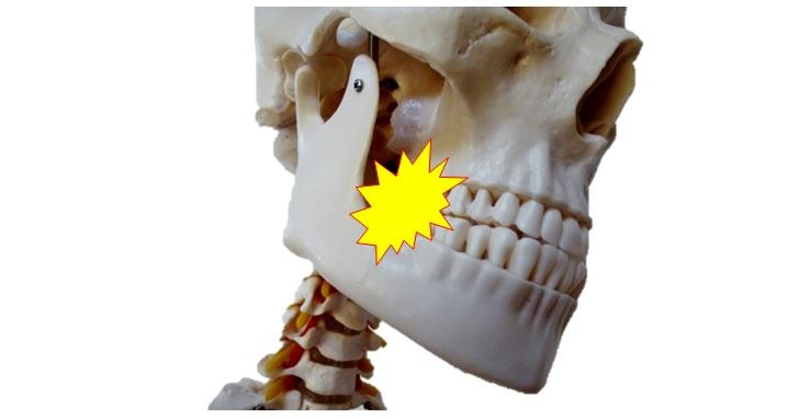 食いしばりと骨格模型