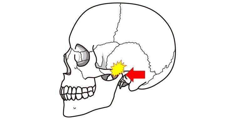 側頭骨が顎を歪ませるイメージ