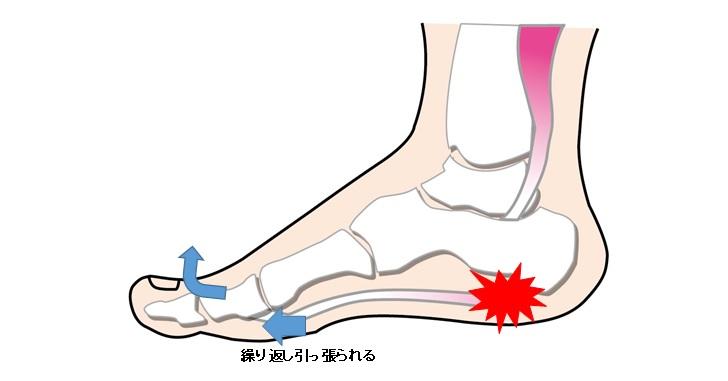 足底筋膜炎の疼痛