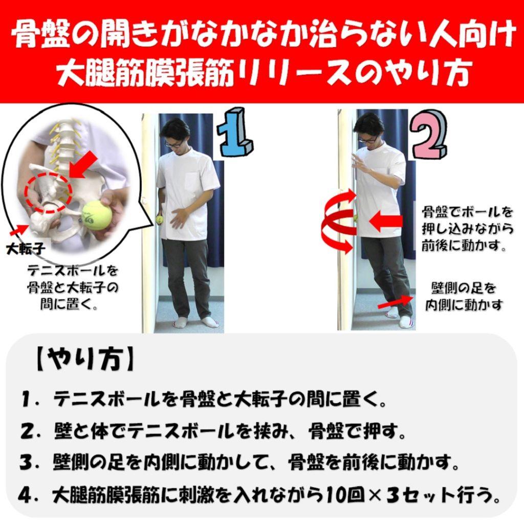 大腿筋膜張筋リリース