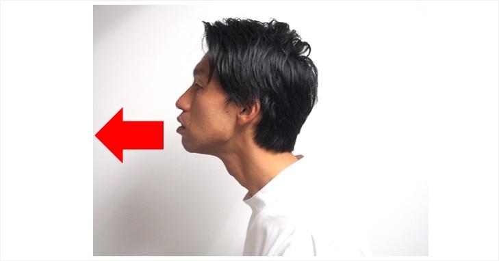 胸鎖乳突筋とストレートネック