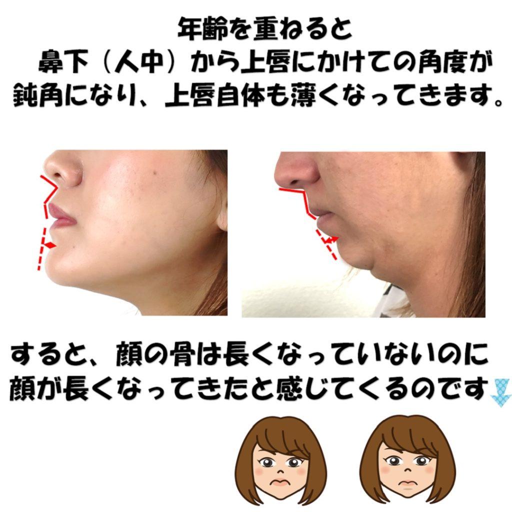 老化による上唇の角度の厚さの減少の説明