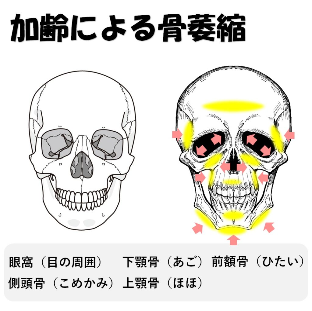 加齢による骨萎縮